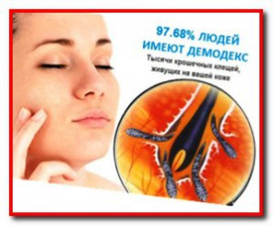 как лечить демодекоз
